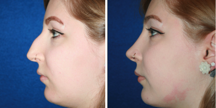 Before & After Rhinoplasty Surgery Toms River NJ | Manasquan