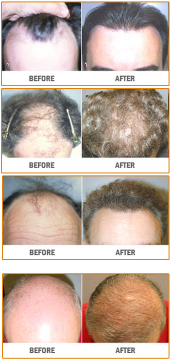 NeoGraft Hair Restoration | New Jersey