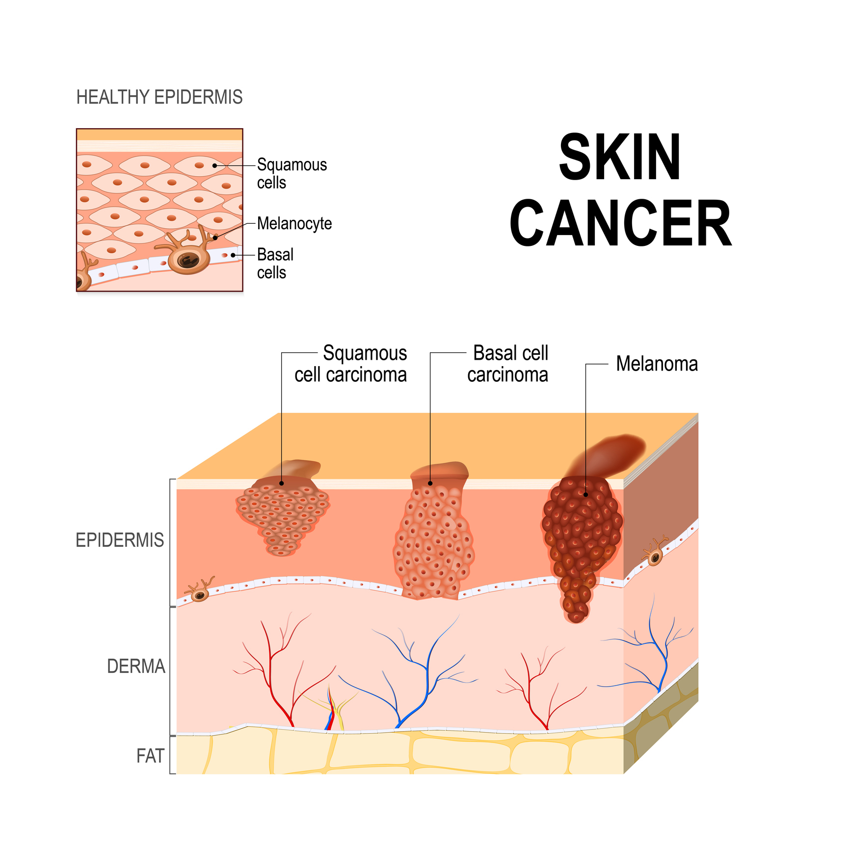 Skin Cancer, FosterMD