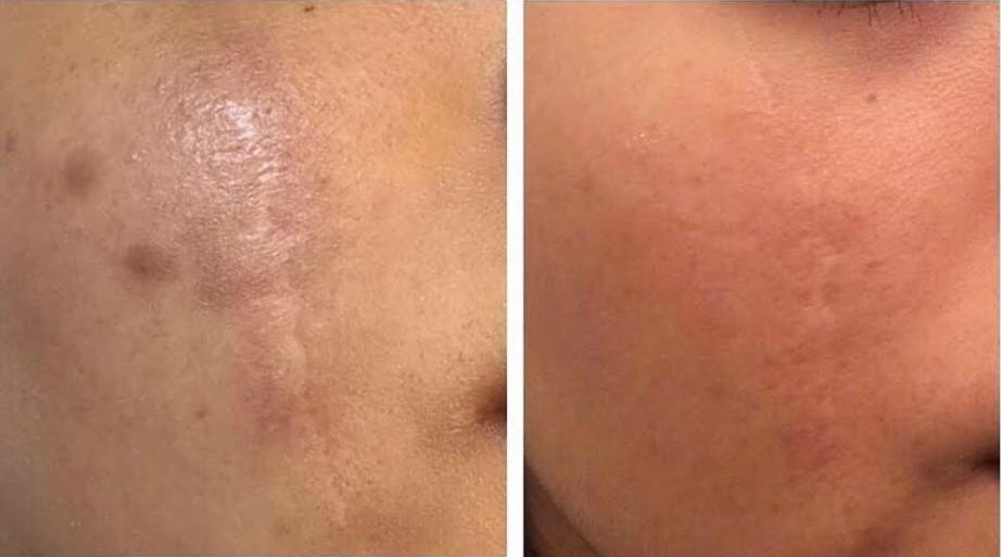 Morpheus8 Cheek Before And After