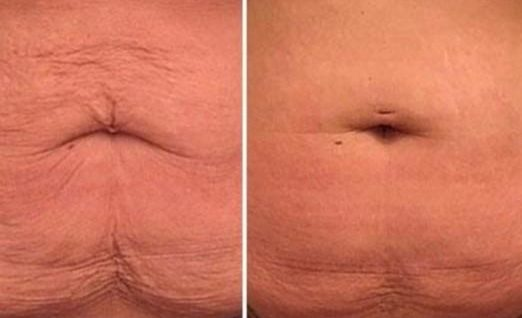 Morpheus8 Stomach Before And After