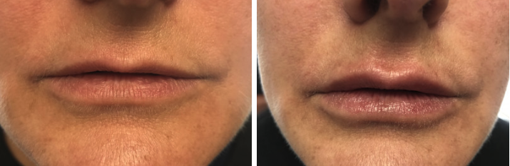Before & After Lip Augmentation Toms River NJ